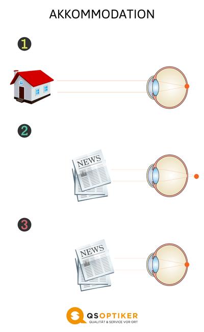 dioptrien online ratgeber qs optiker. Black Bedroom Furniture Sets. Home Design Ideas