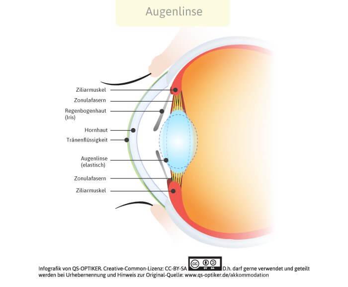 Akkommodation Augenlinse