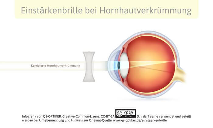 Einstärkenbrille bei Hornhautverkruemmung