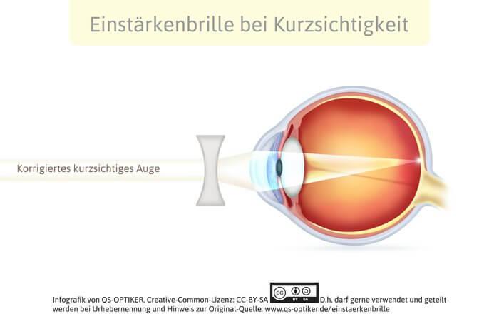 Einstärkenbrille bei Kurzsichtigkeit