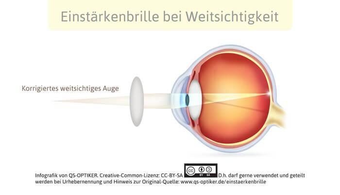 Einstärkenbrille bei Weitsichtigkeit