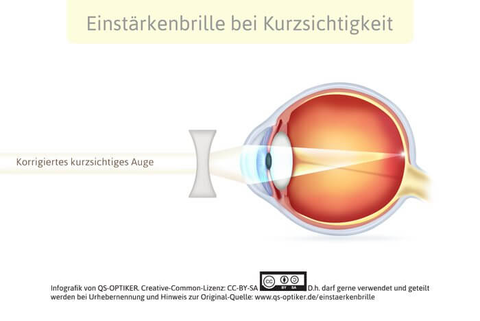 Einstärkenglas Kurzsichtigkeit