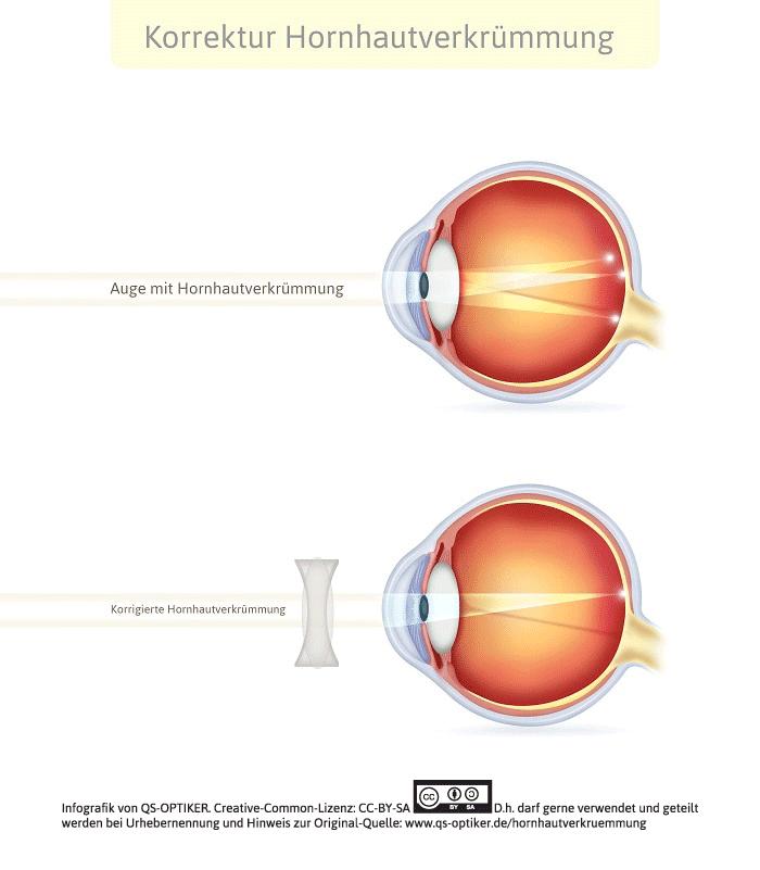 Hornhautverkrümmung Auge - Korrektur