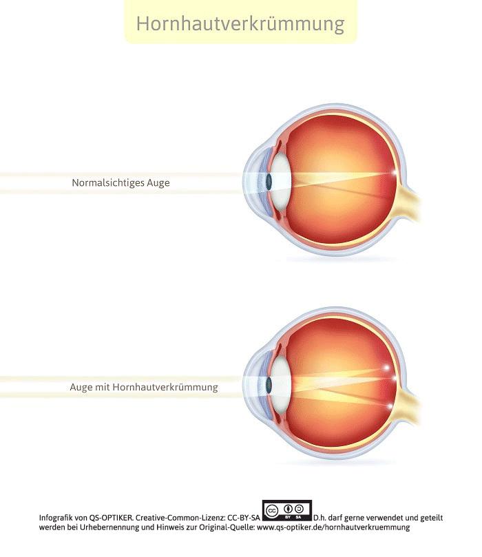 Hornhautverkrümmung Auge