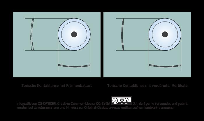 Hornhautverkrümmung - weiche Kontaktlinsen