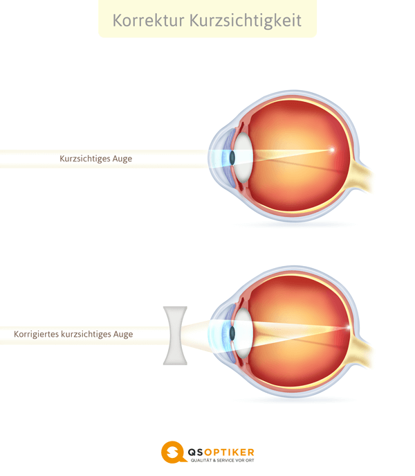 Korrigiertes kurzsichtiges Auge