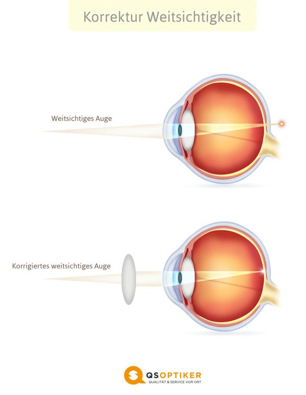 Korrigiertes Weitsichtiges Auge