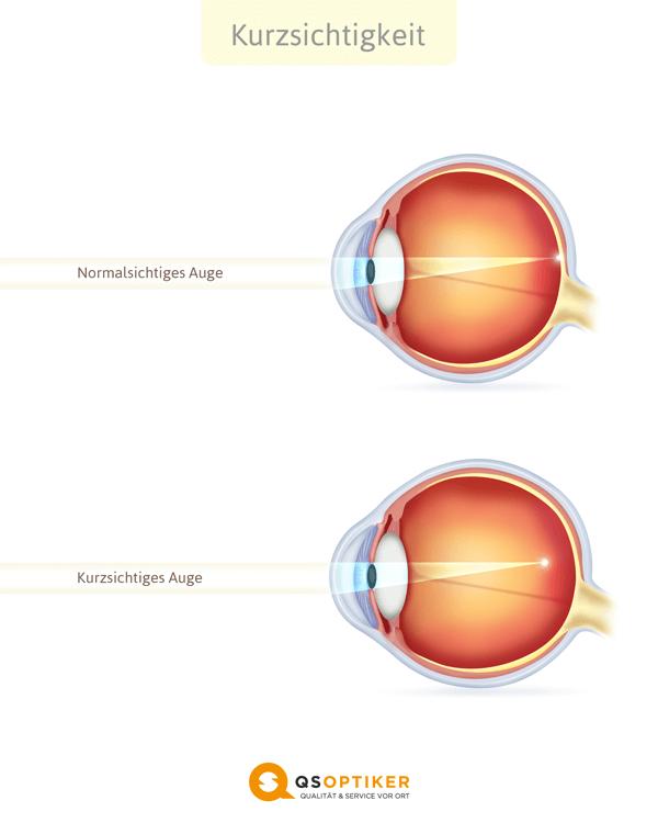 kurzsichtiges Auge