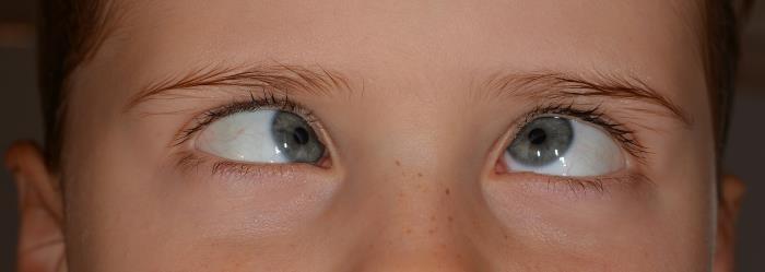 Prismenbrille Schielen