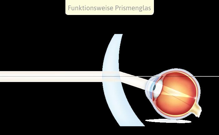 Korrektur Schielen mit einer Prismenbrille
