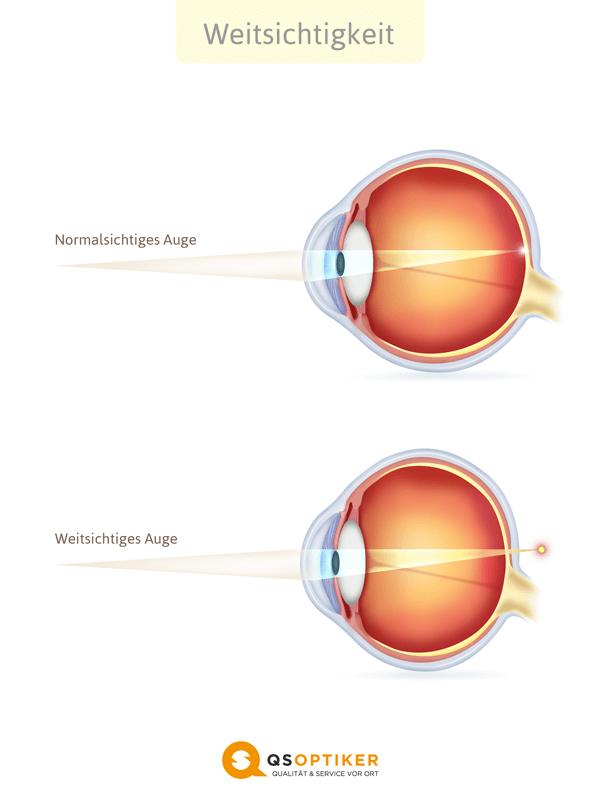 Weitsichtiges Auge